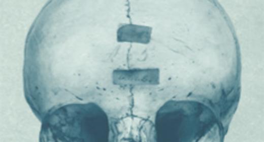 Det indsamlede menneske - Lægevidenskabens råmateriale fra kadaver til dna